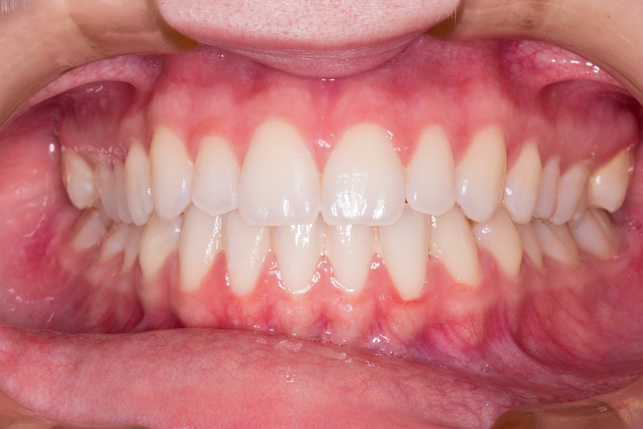 Dokonalé zuby