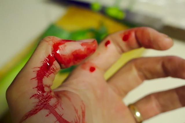krvácení prstu